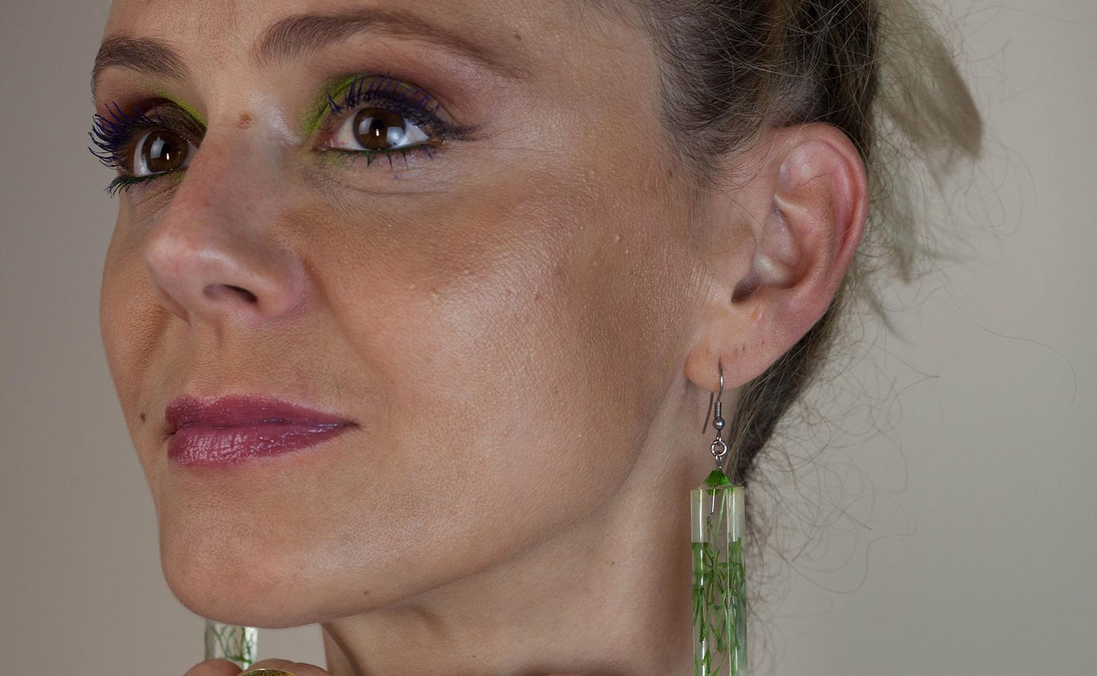 Otoplastia – cirurgia estética da orelha