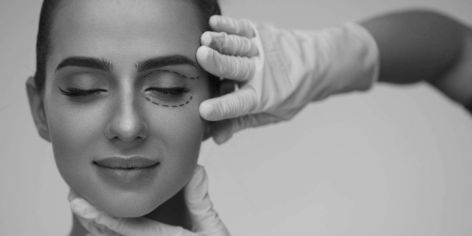 Blefaroplastia – Pálpebra Inferior